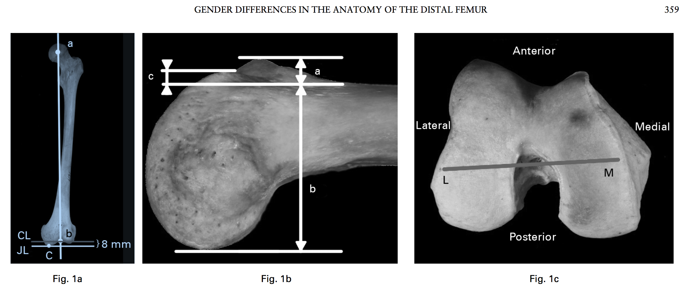 gender-differences-in-the-anatomy-of-the-distal-femur ...